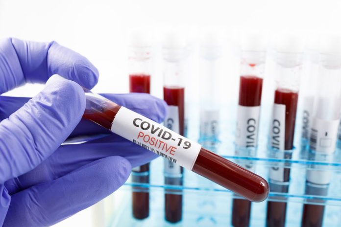 koronavirüs kan grubu